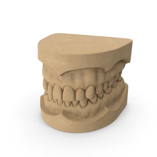 Dental Mold PNG Images & PSDs for Download | PixelSquid - S10604013F