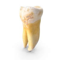 Broken Molar Lower Left Jaw PNG & PSD Images