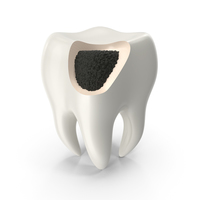 Caries damaged tooth PNG & PSD Images