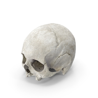 Human Skull Cranium with Leprosy PNG & PSD Images