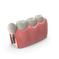 Education Tooth Implant Model PNG & PSD Images