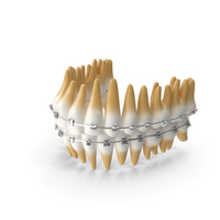Teeth with Braces Model PNG & PSD Images