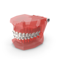 Typodont Teeth Model with Brackets PNG & PSD Images