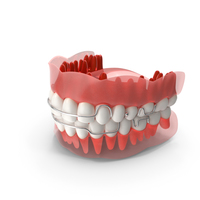 Typodont Tooth Retainer PNG & PSD Images