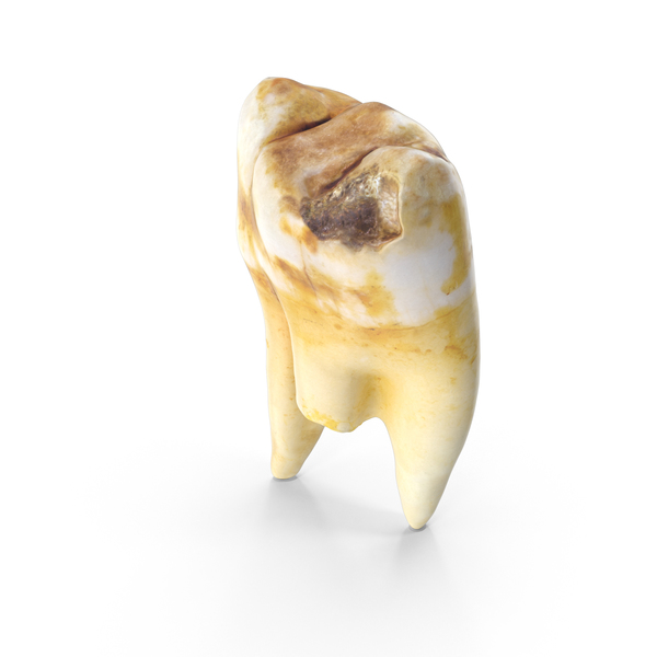 Broken Left Molar with Cavity Upper Jaw PNG & PSD Images