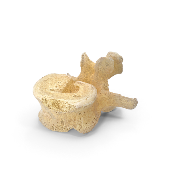 Damaged Lumbar Vertebrae PNG & PSD Images
