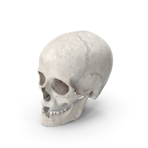 Human Female Skull With Jaw Damaged White PNG & PSD Images