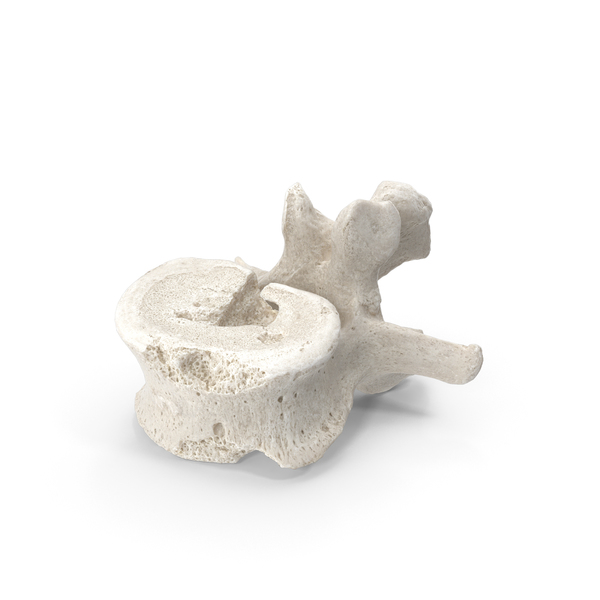 Lumbar Vertebrae L1 to L5 Damaged White PNG & PSD Images