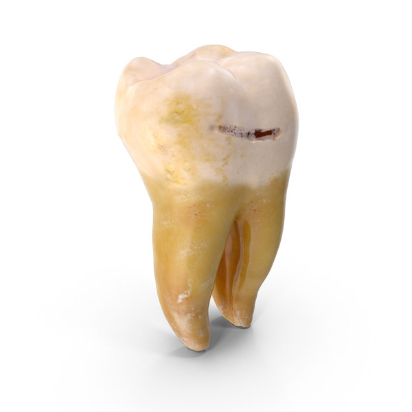 Molar Lower Jaw Left With Cavity PNG & PSD Images