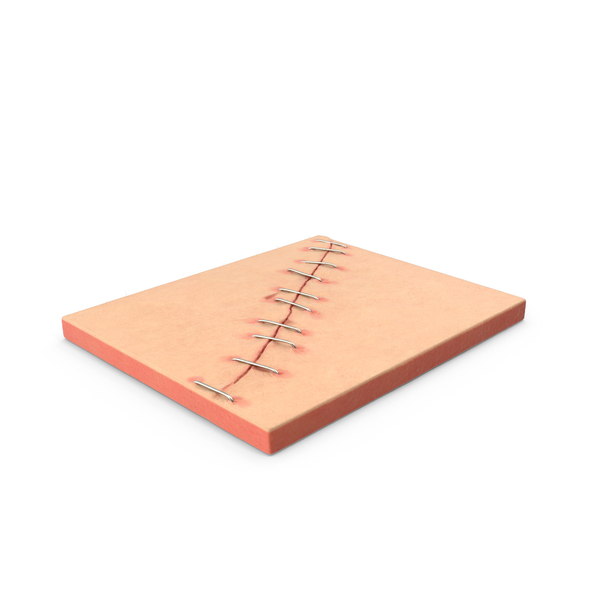 Sutures: Staples PNG & PSD Images