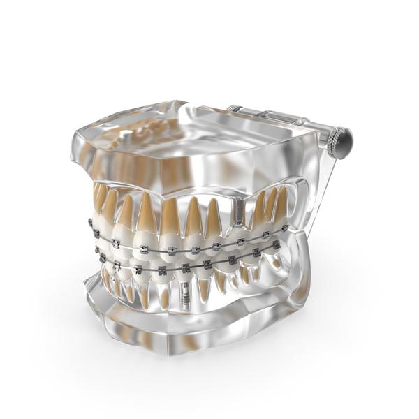 Mold: Transparent Dental Typodont With Bracket and Dental Implants PNG & PSD Images
